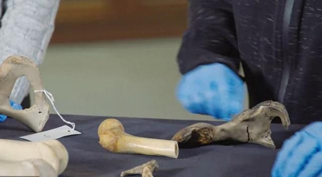 abd siyahi kemik